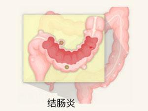 福州哪些方法能检查结肠炎?
