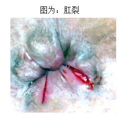 福州医博做肛裂创口微小手术疼吗?
