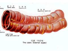 结肠炎怎么治疗